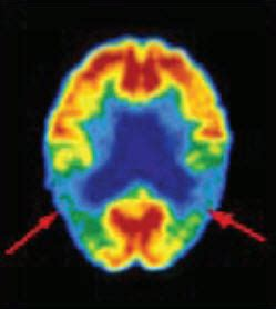 PET-CT Delivers Earlier, More Accurate Detection of